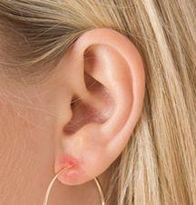 Ear lobe allergic reaction to jewellery