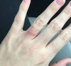 Allergic reaction to wearing a ring